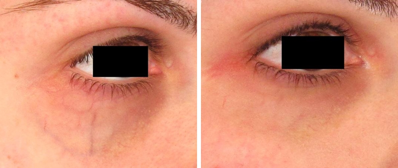 Veins Around Eyes Makeup | Vizitmir.com