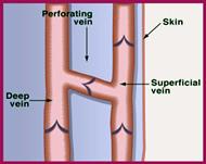 Perforator veins